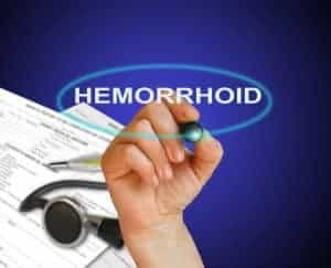 hemorrhoid natural remedies